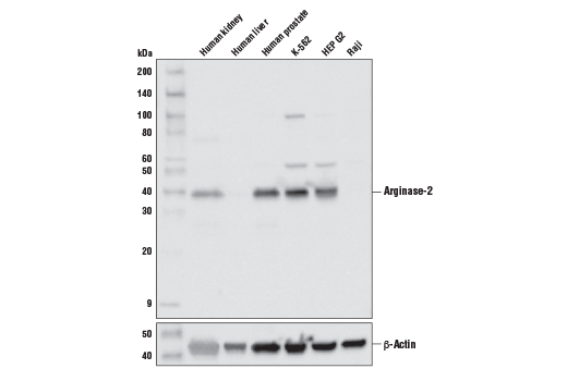 Western Blotting Image 1: Arginase-2 (D9J1N) XP® Rabbit mAb