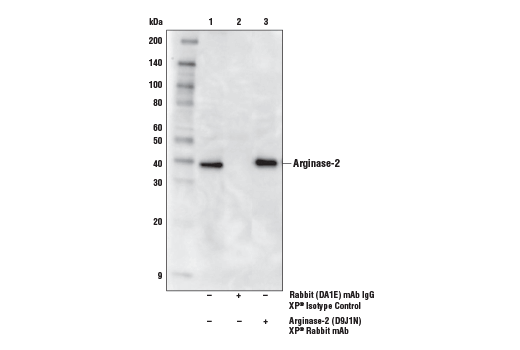 Immunoprecipitation Image 1: Arginase-2 (D9J1N) XP® Rabbit mAb