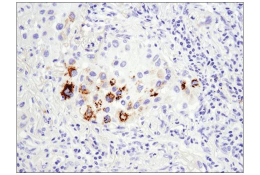 Immunohistochemical analysis of paraffin-embedded human lung adenocarcinoma using Arginase-2 (D9J1N) XP<sup>® </sup>Rabbit mAb.