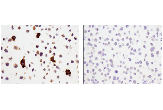 Immunohistochemical analysis of paraffin-embedded THP-1 cell pellet (left, positive) or Raji cell pellet (right, negative) using CD14 (D7A2T) Rabbit mAb (IHC Formulated).