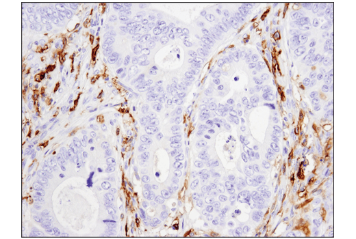 Immunohistochemical analysis of paraffin-embedded human colon carcinoma using CD14 (D7A2T) Rabbit mAb (IHC Formulated).