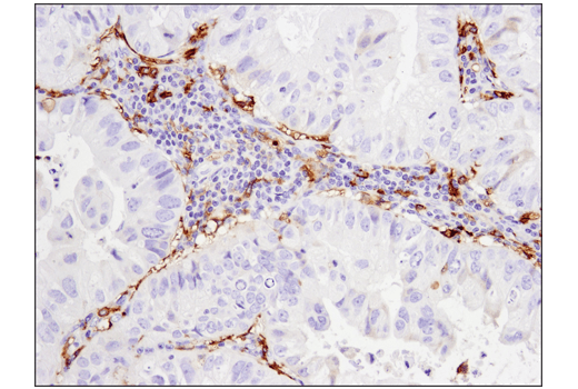 Immunohistochemical analysis of paraffin-embedded human non-small cell lung carcinoma using CD14 (D7A2T) Rabbit mAb (IHC Formulated).