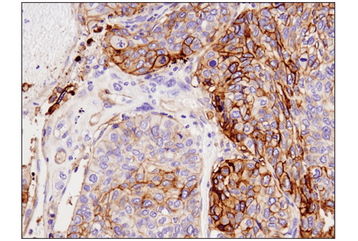 Immunohistochemical analysis of paraffin-embedded human squamous cell carcinoma of the lung using Tissue Factor/CD142 (E9M6T) XP<sup>® </sup>Rabbit mAb.