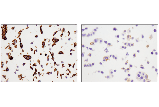 Immunohistochemistry Image 5: Tissue Factor/CD142 (E9M6T) XP® Rabbit mAb