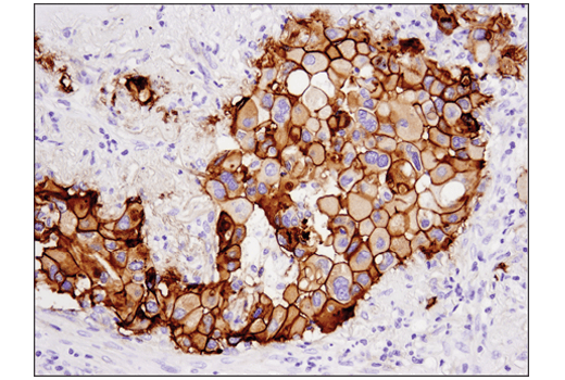 Immunohistochemistry Image 3: Tissue Factor/CD142 (E9M6T) XP® Rabbit mAb