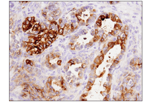 Immunohistochemistry Image 4: Tissue Factor/CD142 (E9M6T) XP® Rabbit mAb