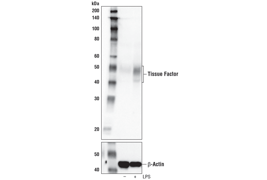 Western blot analysis of extracts from THP-1 cells, untreated (-) or treated with LPS #14011 (1 μg/mL, 6h; +), using Tissue Factor (E9M6T) XP<sup>®</sup> Rabbit mAb (upper) and β-Actin (D6A8) Rabbit mAb #8457 (lower).