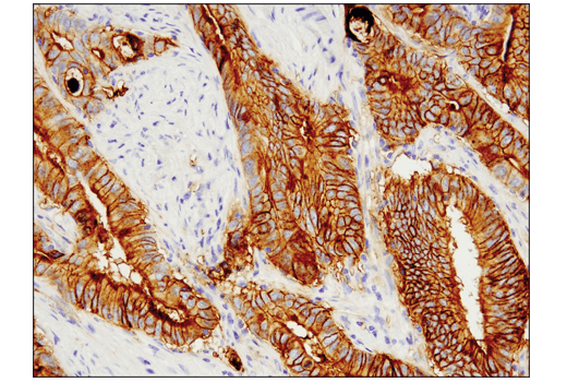 Immunohistochemical analysis of paraffin-embedded human colon adenocarcinoma using Tissue Factor/CD142 (E9M6T) XP® Rabbit mAb performed on the Leica® Bond™ Rx.