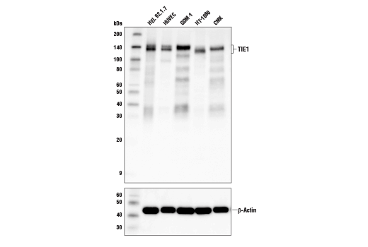 Western blot analysis of extracts from various cell lines using TIE1 (D2K2T) Rabbit mAb (upper) and β-Actin (D6A8) Rabbit mAb #8457 (lower).