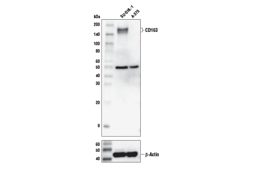 Western blot analysis of extracts from SU-DHL-1 and A-375 cells using CD163 (D6U1J) Rabbit mAb (upper) and β-Actin (D6A8) Rabbit mAb #8457 (lower)