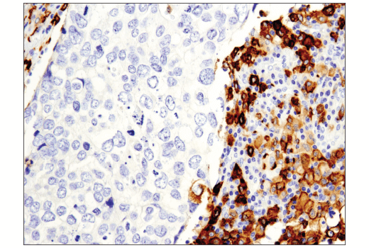 Immunohistochemical analysis of paraffin-embedded human squamous cell lung carcinoma using CD163 (D6U1J) Rabbit mAb.