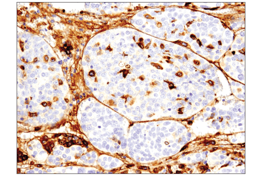 Immunohistochemical analysis of paraffin-embedded human serous carcinoma of the ovary using CD163 (D6U1J) Rabbit mAb.