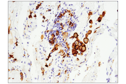 Immunohistochemical analysis of paraffin-embedded human non-small cell lung carcinoma using CD163 (D6U1J) Rabbit mAb performed on the Leica® Bond™ Rx.