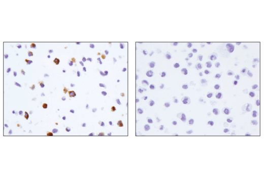 Immunohistochemical analysis of paraffin-embedded MUTZ-3 cell pellet (left, positive) or THP-1 cell pellet (right, negative) using CD206/MRC1 (E2L9N) Rabbit mAb.