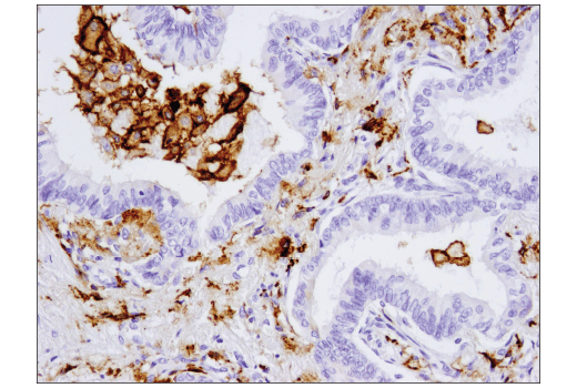 Immunohistochemical analysis of paraffin-embedded human non-small cell lung carcinoma using CD206/MRC1 (E2L9N) Rabbit mAb.