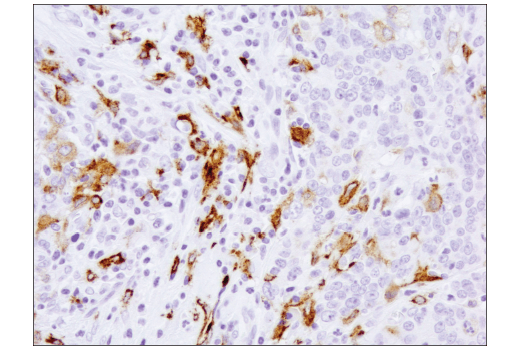 Immunohistochemical analysis of paraffin-embedded human colon carcinoma using CD206/MRC1 (E2L9N) Rabbit mAb.