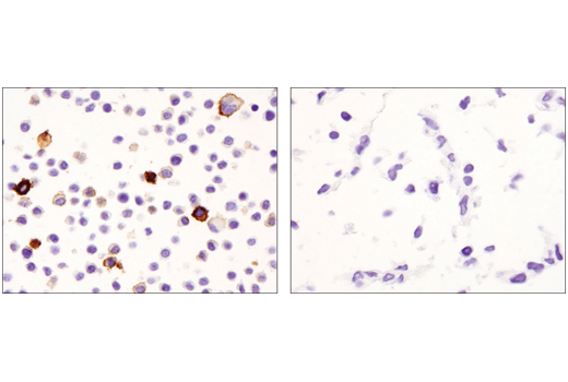 Immunohistochemical analysis of paraffin-embedded Raw 264.7 cell pellet (left, positive) or C2C12 cell pellet (right, negative) using CD11c (D1V9Y) Rabbit mAb.