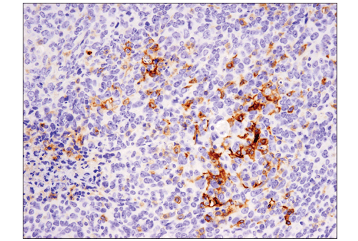 Immunohistochemical analysis of paraffin-embedded 4T1 mammary tumor using CD11c (D1V9Y) Rabbit mAb performed on the Leica<sup>®</sup> Bond™ Rx.