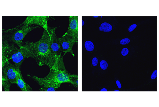 Confocal immunofluorescent analysis of A172 (left, positive) or U-87 MG (right, negative) cells using NCAM-L1 (D5N9S) Rabbit mAb (green). Blue pseudocolor = DRAQ5<sup>®</sup> #4084 (fluorescent DNA dye).