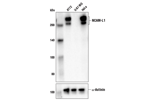 Western blot analysis of extracts from A172, U-87 MG and HeLa cell lines using NCAM-L1 (D5N9S) Rabbit mAb (upper) and α-Actinin (D6F6) XP<sup>®</sup> Rabbit mAb #6487 (lower).