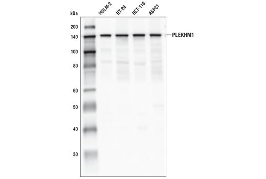 Monoclonal Antibody - PLEKHM1 (E9S3Q) Rabbit mAb - Immunoprecipitation, Western Blotting, UniProt ID Q9Y4G2, Entrez ID 9842 #77092 - Autophagy