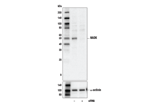Western blot analysis of extracts from 293 cells, transfected with non-targeted (-) or targeted (+) siRNA, using NADK Antibody (upper) and α-Actinin (D6F6) XP<sup>®</sup>Rabbit mAb #6487 (lower).