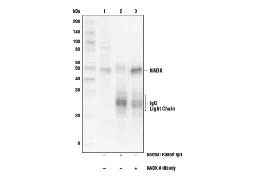 Polyclonal Antibody Immunoprecipitation Nad Kinase Activity