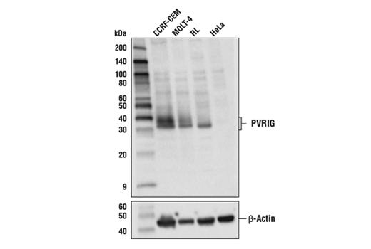 Polyclonal Antibody - PVRIG Antibody - Western Blotting, UniProt ID Q6DKI7, Entrez ID 79037 #52671, Translational Research