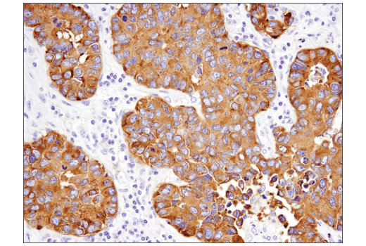 Immunohistochemical analysis of paraffin-embedded human non-small cell lung carcinoma using Synaptophysin (D8F6H) XP<sup>®</sup> Rabbit mAb.