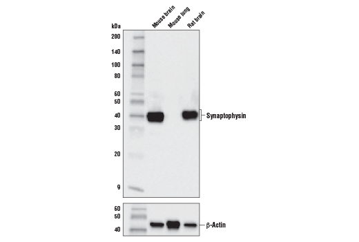 Western blot analysis of extracts from mouse and rat tissue using Synaptophysin (D8F6H) XP<sup>®</sup> Rabbit mAb (upper) and B-Actin (D6A8) Rabbit mAb #8457 (lower).