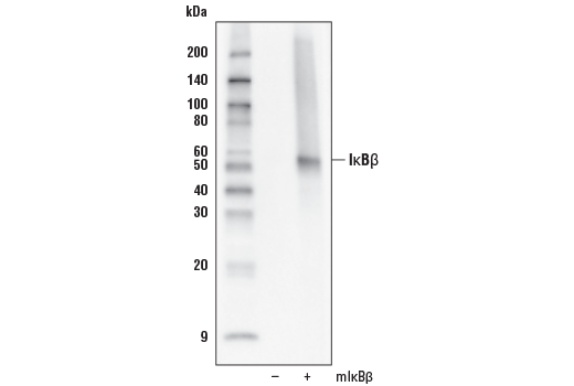 Western blot analysis of extracts from 293T cells, mock transfected (-) or transfected with a construct expressing full-length mouse IκBβ (mIκBβ; +), using IκBβ (D2O1T) Rabbit mAb.