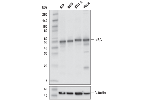 Western blot analysis of extracts from various cell lines using IκBβ (D2O1T) Rabbit mAb (upper) or β-Actin (D6A8) Rabbit mAb #8457 (lower).