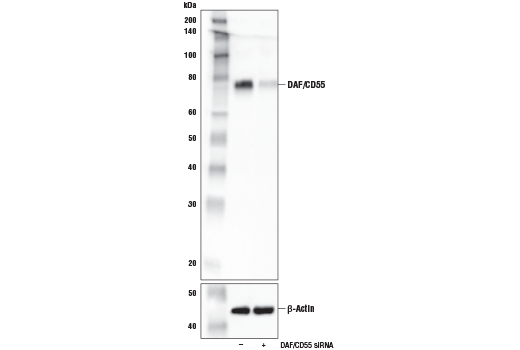 Western blot analysis of extracts from HeLa cells, mock transfected (-) or transfected with siRNA targeting human DAF/CD55 (+), using DAF/CD55 Antibody (upper) and β-Actin (D6A8) Rabbit mAb #8457 (lower).
