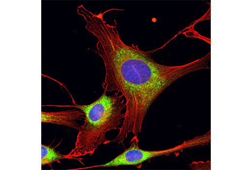 Confocal immunofluorescent analysis of NIH/3T3 cells using Calreticulin (D3E6) XP<sup>®</sup> Rabbit mAb (Alexa Fluor<sup>®</sup> 488 Conjugate) (green) and β-Actin (13E5) Rabbit mAb (Alexa Fluor<sup>®</sup> 555 Conjugate) #8046 (red). Blue pseudocolor = DRAQ5<sup>®</sup> #4084 (fluorescent DNA dye).