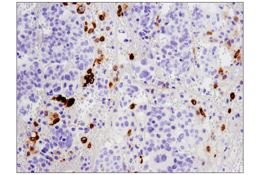 Monoclonal Antibody - TIM-4 (D3W4F) XP® Rabbit mAb, UniProt ID Q96H15, Entrez ID 91937 #75484 - Immunology and Inflammation