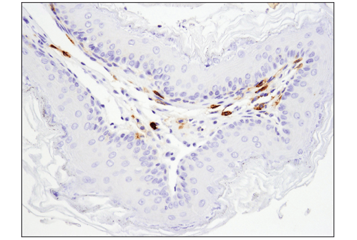 Immunohistochemical analysis of paraffin-embedded mouse forestomach using FcγRIIB (D8F9C) XP<sup>®</sup> Rabbit mAb (Mouse Specific).