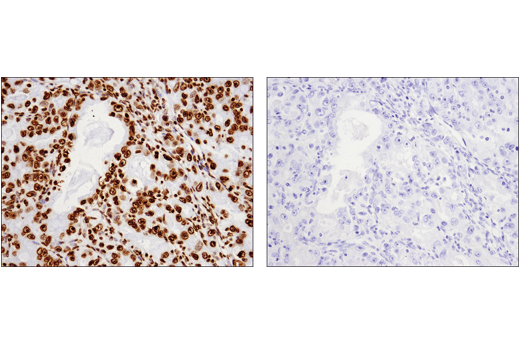 Immunohistochemical analysis of paraffin-embedded human ovarian carcinoma using Histone H3 (1B1B2) Mouse mAb #14269 (left) compared to concentration-matched Mouse (E1D5H) mAb IgG3 Isotype Control (right).