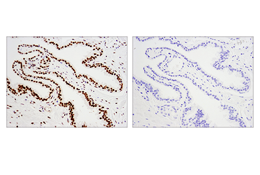 Immunohistochemical analysis of paraffin-embedded human prostate carcinoma using PCNA (PC10) Mouse mAb (left) compared to concentration matched Mouse (E5Y6Q) mAb IgG2a Isotype Control (right).