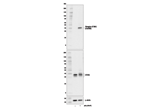 Western blot analysis of extracts from THP-1 cells differentiated with TPA (12-O-Tetradecanoylphorbol-13-Acetate) #4174 (80 nM, 16 hr) and then untransfected (-) or transfected with poly(dA:dT) (5 μg/mL, 3 hr; +) using Phospho-STING (Ser366) (D7C3S) Rabbit mAb (upper), STING (D2P2F) Rabbit mAb #13647 (middle), or β-Actin (D6A8) Rabbit mAb #8457 (lower).