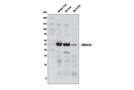 Western blot analysis of extracts from mouse liver, rat liver, and COLO 205 cells using HMGCS2 (D3U1A) Rabbit mAb.