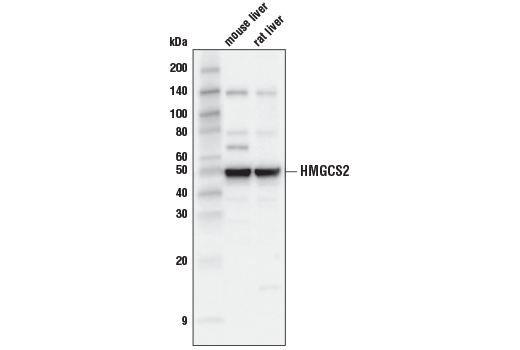 Western blot analysis of extracts from mouse liver and rat liver using HMGCS2 (D8B5M)) Rabbit mAb.