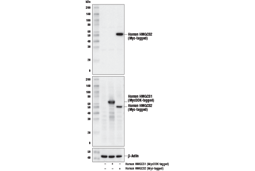 Western blot analysis of extracts from 293T cells, mock transfected (-) or transfected with a construct expressing MycDDK-tagged full-length human HMGCS1 (Human HMGCS1 (MycDDK-tagged); +) or Myc-tagged full-length human HMGCS2 (Human HMGCS2 (Myc-tagged); +) using HMGCS2 (D8B5M) Rabbit mAb (upper), Myc-Tag (71D10) Rabbit mAb #2278 (middle), or β-Actin (D6A8) Rabbit mAb #8457 (lower).