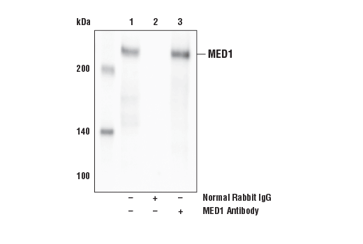 Immunoprecipitation of MED1 from HeLa cell extracts. Lane 1 is 10% input, lane 2 is Normal Rabbit IgG #2729, and lane 3 is MED1 Antibody. Western blot analysis was performed using MED1 Antibody.