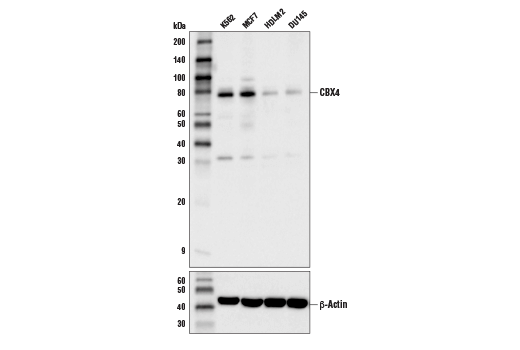 Polyclonal Antibody - CBX4 Antibody - Immunoprecipitation, Western Blotting, UniProt ID O00257, Entrez ID 8535 #44268 - Chromatin Regulation / Nuclear Function