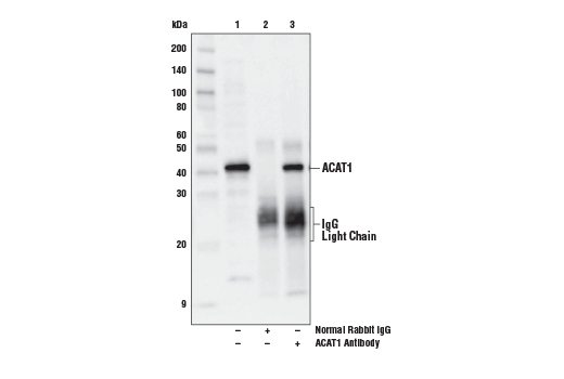 Immunoprecipitation of ACAT1 from 293T cell extracts. Lane 1 is 10% input, lane 2 is Normal Rabbit IgG #2729, and lane 3 is ACAT1 Antibody. Western blot analysis was performed using ACAT1 Antibody. Anti-Rabbit light chain-specific secondary antibody was used for detection.