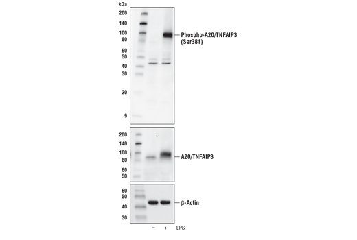 Western blot analysis of extracts from THP-1 cells differentiated with TPA #4174 (80 nM, 16 hr) and then untreated (-) or treated with LPS #14011 (100 ng/mL, 2 hr; +) using Phospho-A20/TNFAIP3 (Ser381) Antibody (upper), A20/TNFAIP3 (D13H3) Rabbit mAb #5630 (middle), or β-Actin (D6A8) Rabbit mAb #8457 (lower).