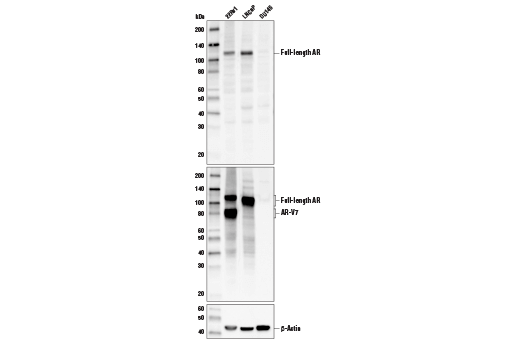 Western blot analysis of extracts from 22Rv1 (AR-V7-positive), LNCaP (AR-V7 negative), and DU145 (Androgen Receptor-negative) cells using Androgen Receptor Antibody (Carboxy-terminal Antigen) (upper), Androgen Receptor (D6F11) XP<sup>®</sup> Rabbit mAb #5153 (middle), and Β-Actin (D6A8) Rabbit mAb #8457 (lower).
