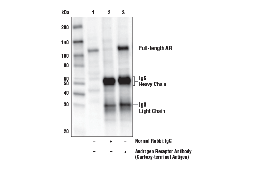 Immunoprecipitation Image 1: Androgen Receptor Antibody (Carboxy-terminal Antigen)
