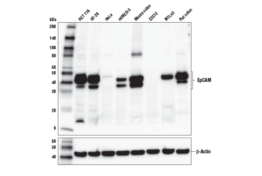 Western blot analysis of extracts from various cell lines and tissues using EpCAM (E6V8Y) XP<sup>®</sup> Rabbit mAb (Mouse Preferred) (upper) and β-Actin (D6A8) Rabbit mAb #8457 (lower).