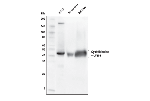 Western blot analysis of extracts from K-562 cells, mouse liver, and rat liver using Cystathionine γ-Lyase (D1N1D) Rabbit mAb.